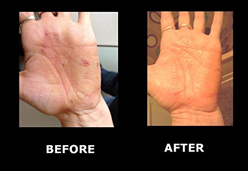 Crocodile oil before and after